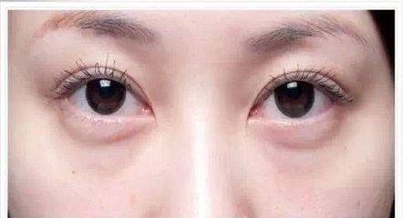 云镜台:千万别让你的眼睛,暴露了你的年龄